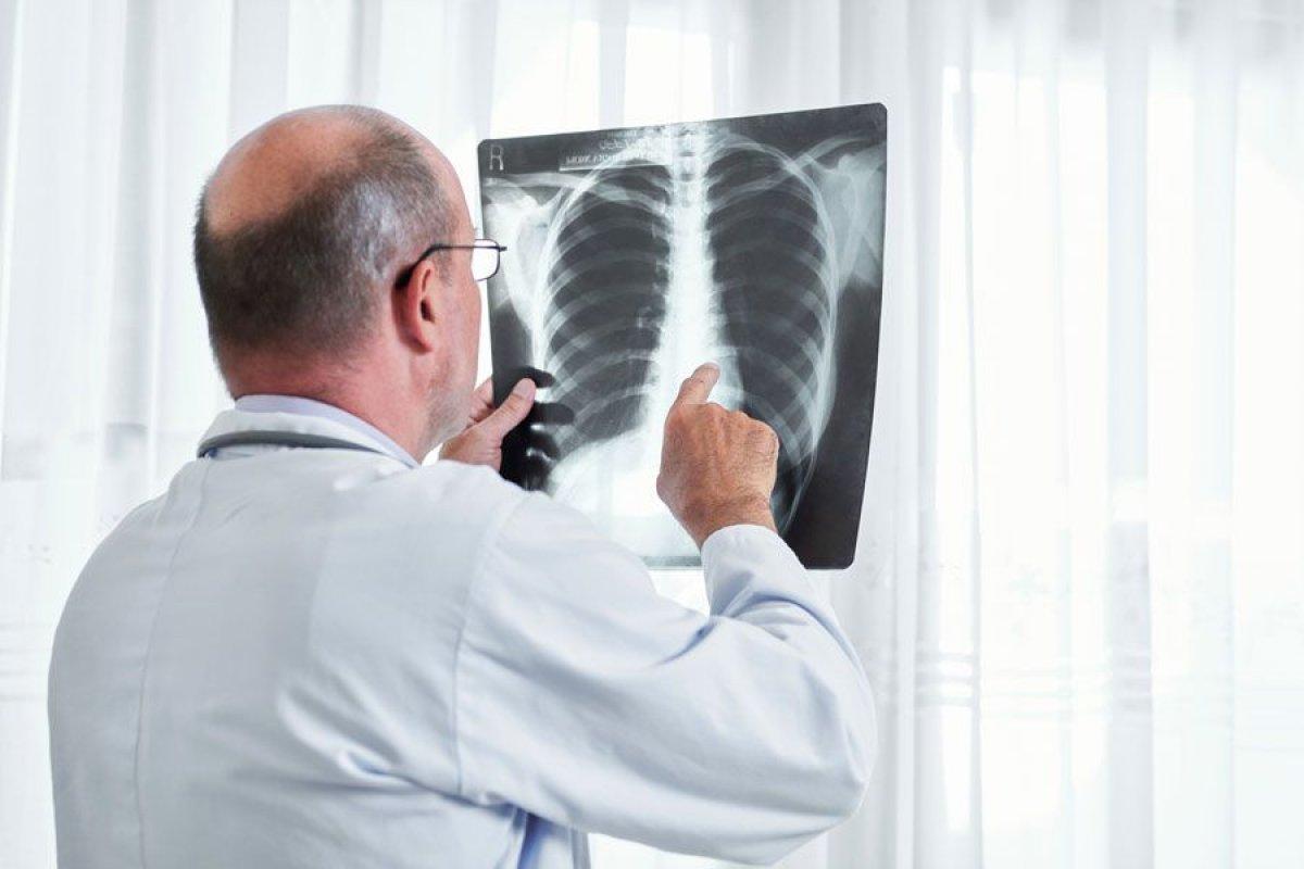 За сутки 346 человек заболели пневмонией с признаками КВИ