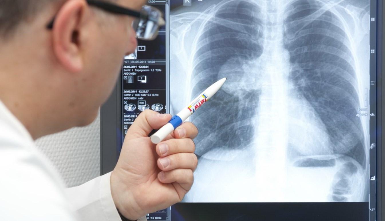Коронавирусная пневмония в Казахстане: число заболевших растет