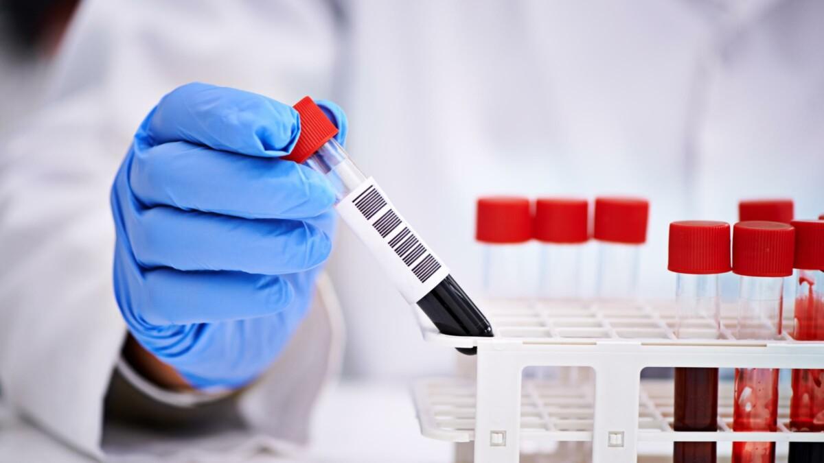 Стали известны подробности о новых заболевших КВИ в Актобе