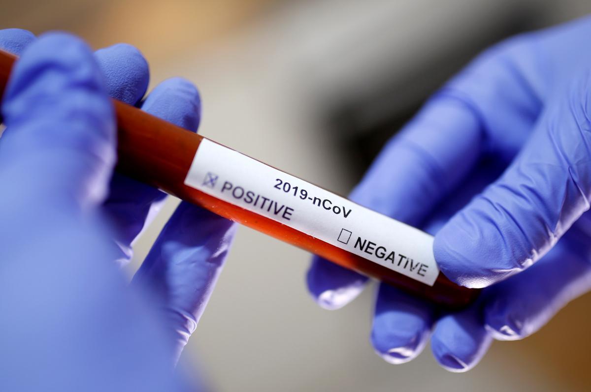 Число зафиксированных в Казахстане случаев коронавируса не увеличилось