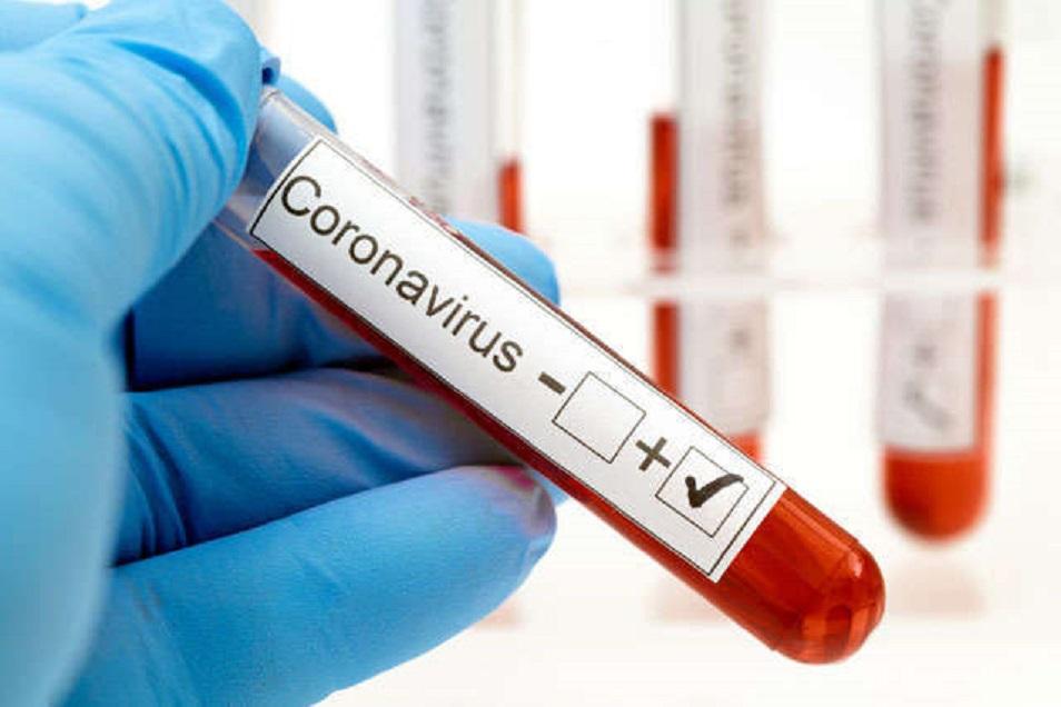 Қазақстанда 64 475 адам коронавирус инфекциясынан емделуде