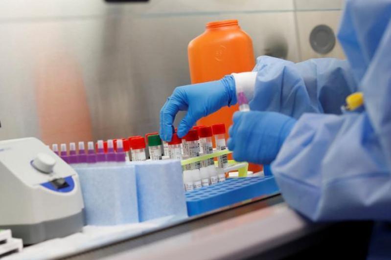 Стало известно, сколько казахстанцев заразилось коронавирусом