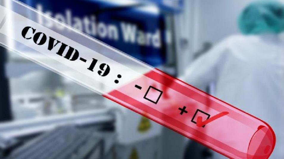 На закупку тепловизоров и тестов на коронавирус потрачено 2,7 млрд тенге
