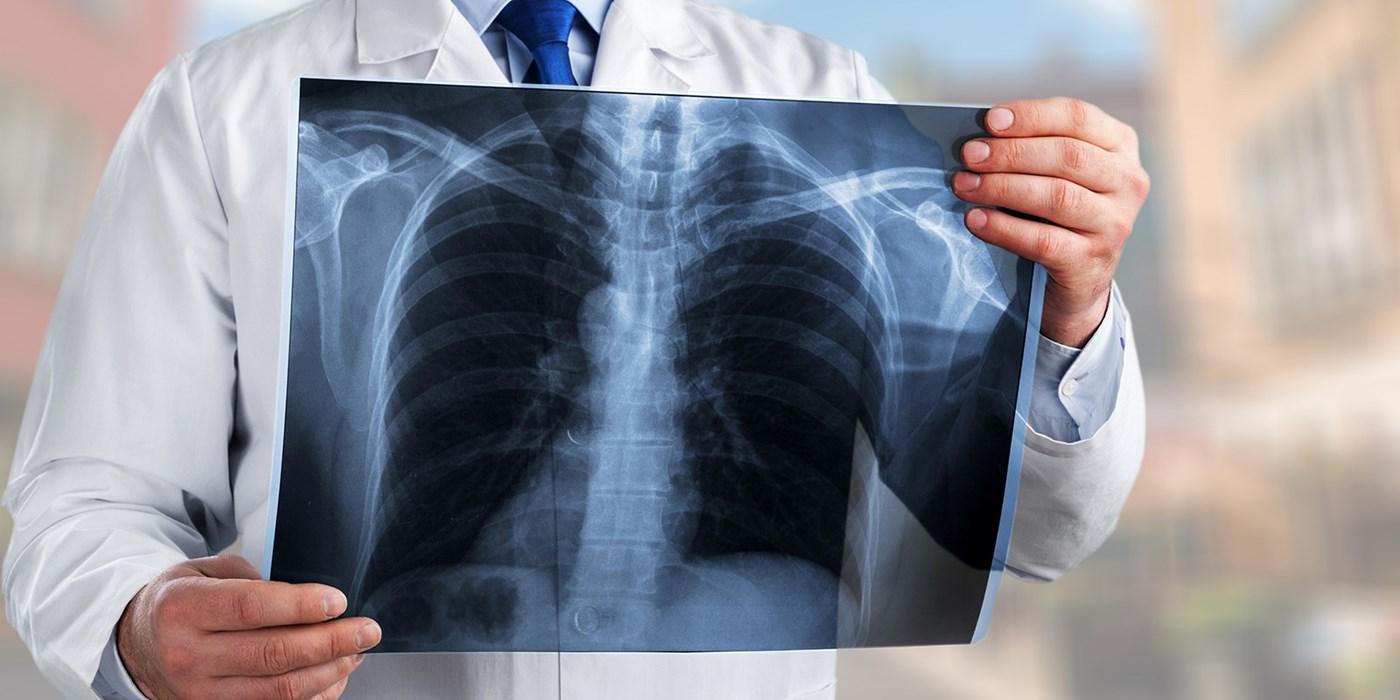 Коронавирусная пневмония в Казахстане: люди продолжают умирать