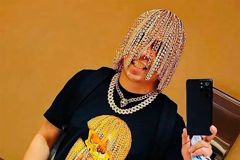 Рэпер вживил в голову золотые цепи вместо волос