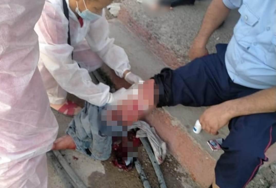 Полицейский пришел за подозреваемым и получил нож в ногу