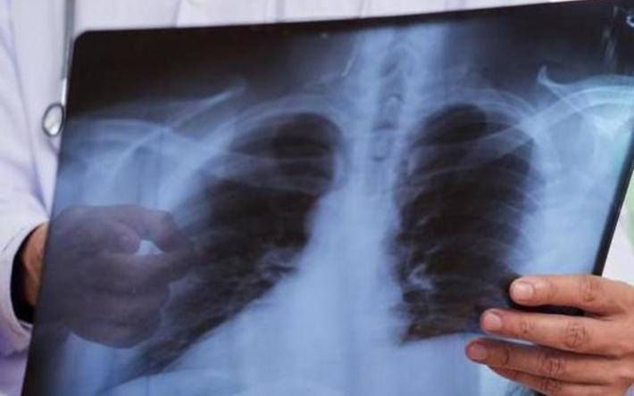 Сколько казахстанцев заболели коронавирусной пневмонией?