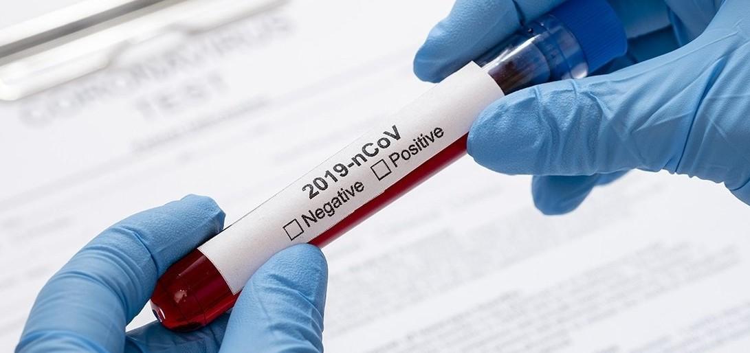 В Нур-Султане снизили стоимость ПЦР-тестов на коронавирус для перелетов