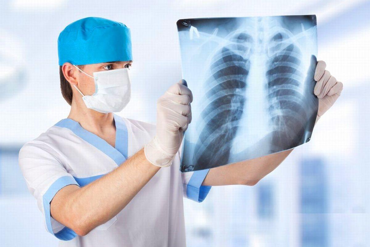 С начала августа в РК от пневмонии умерли более ста человек