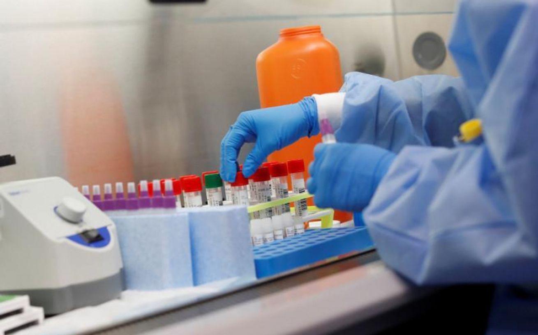 За сутки в Казахстане зарегистрировали 1069 случаев КВИ и 798 пневмоний