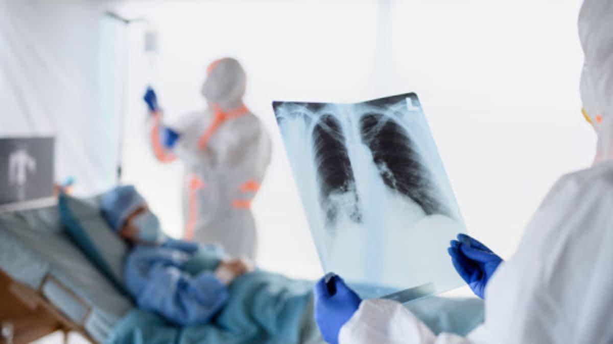 В Казахстане за сутки выявлено 258 случаев коронавирусной пневмонии