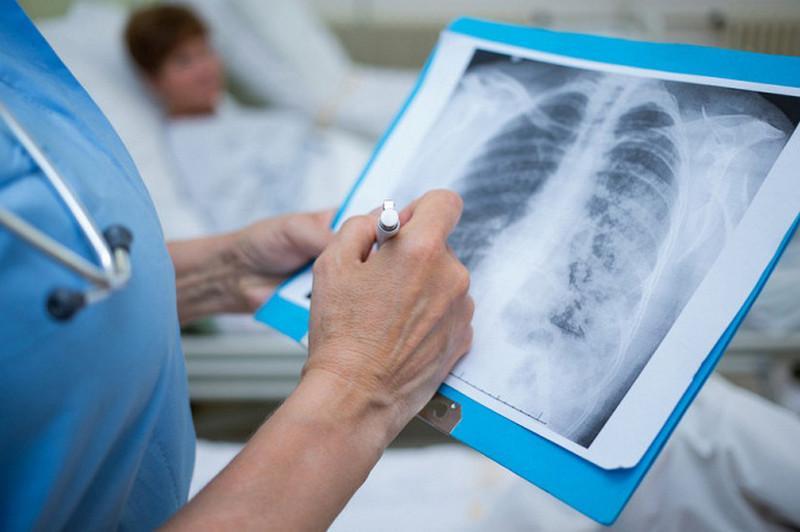 Более 3800 медиков получили выплаты в связи с заражением COVID-19 и пневмонией