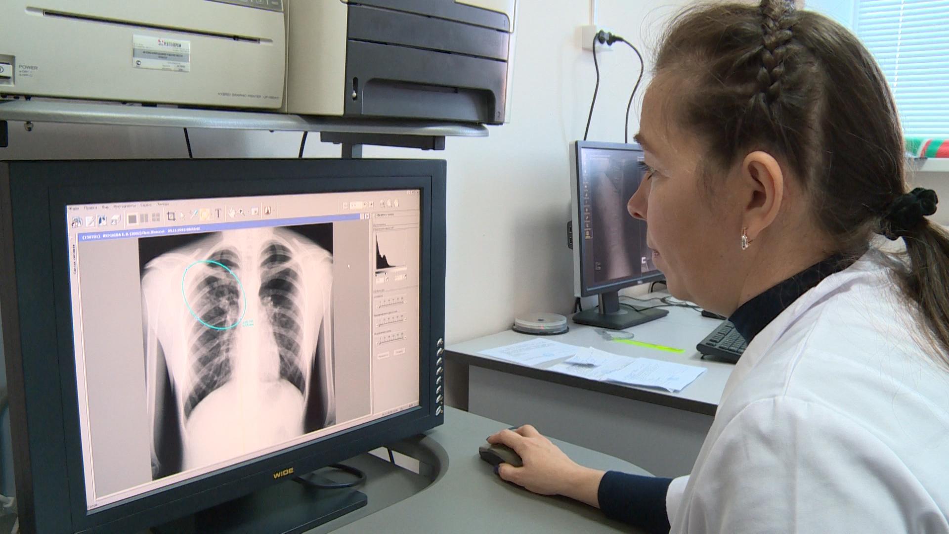 Коронавирусная пневмония: более сотни заболевших за сутки