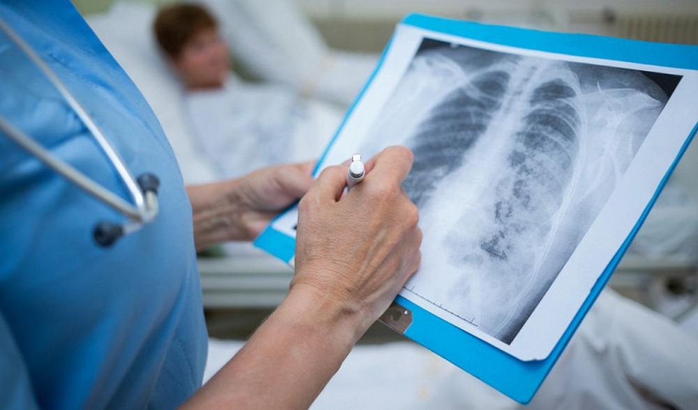 Коронавирусная пневмония – более сотни случаев за сутки