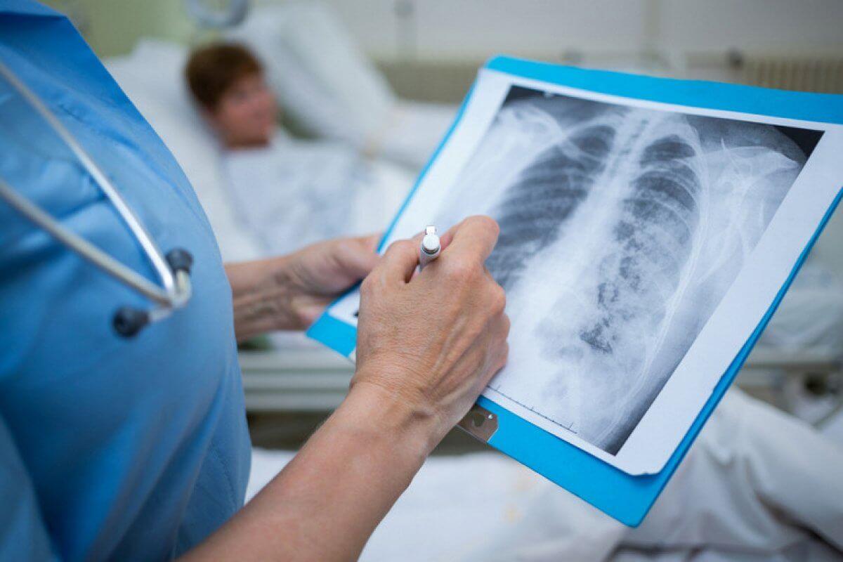 Коронавирусная пневмония в РК: более сотни случаев за сутки