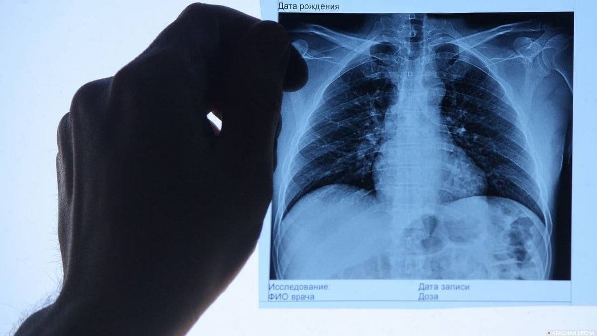 Коронавирусная пневмония: 81 заболевший, 2 летальных случая за сутки