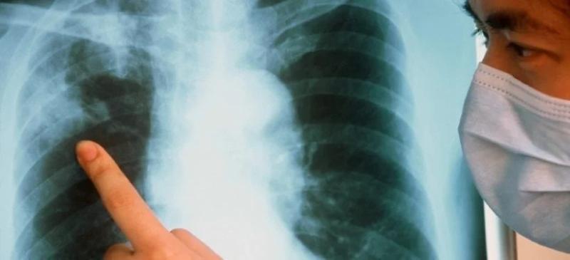В Астане выросла смертность от туберкулеза