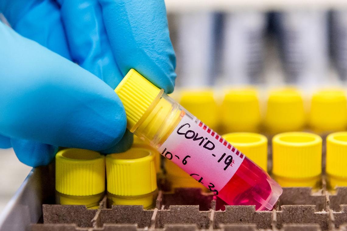 Коронавирус індетін жұқтырған тағы 20 жағдай тіркелді
