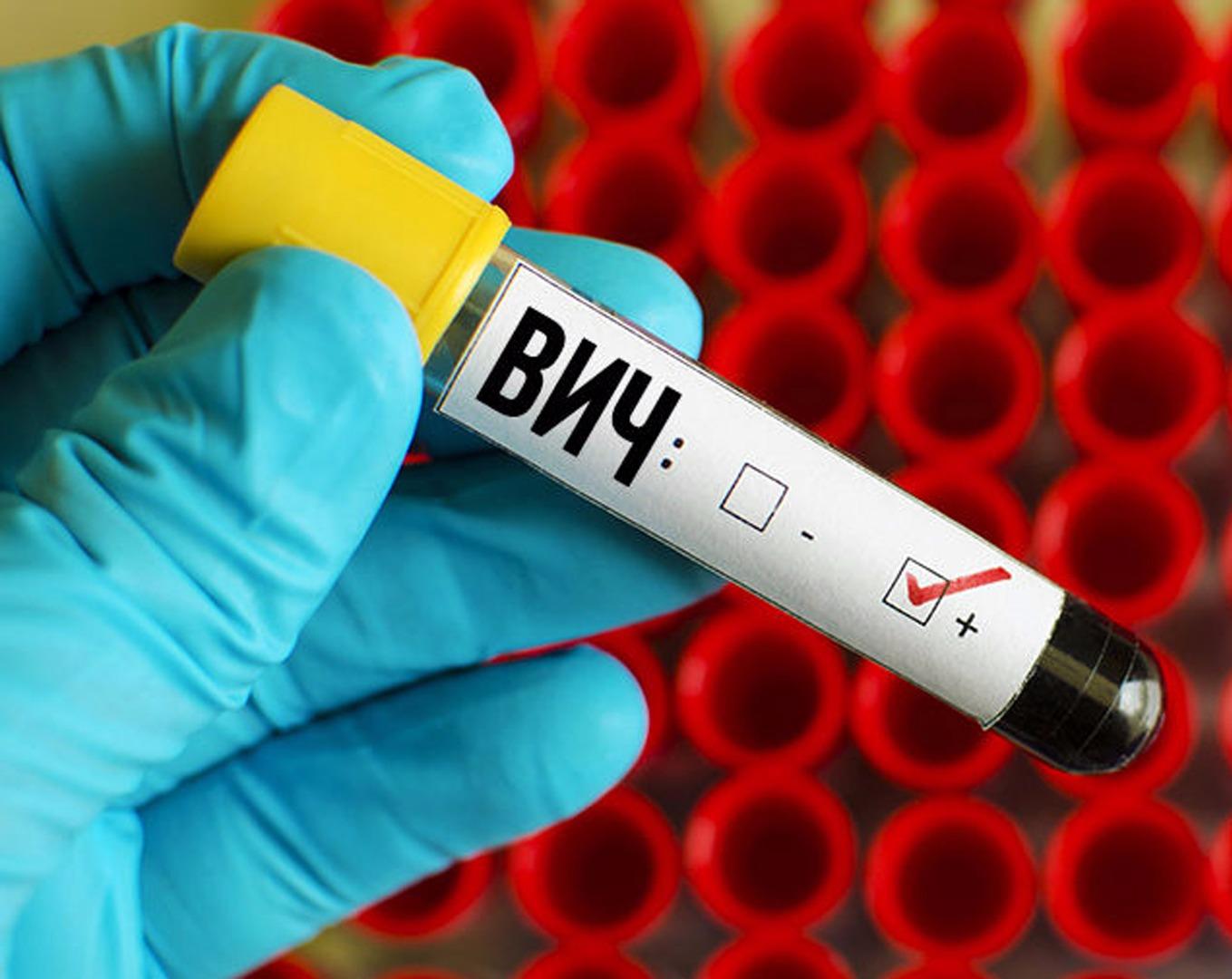 В Казахстане в июне выявлено 310 новых носителей ВИЧ-инфекции