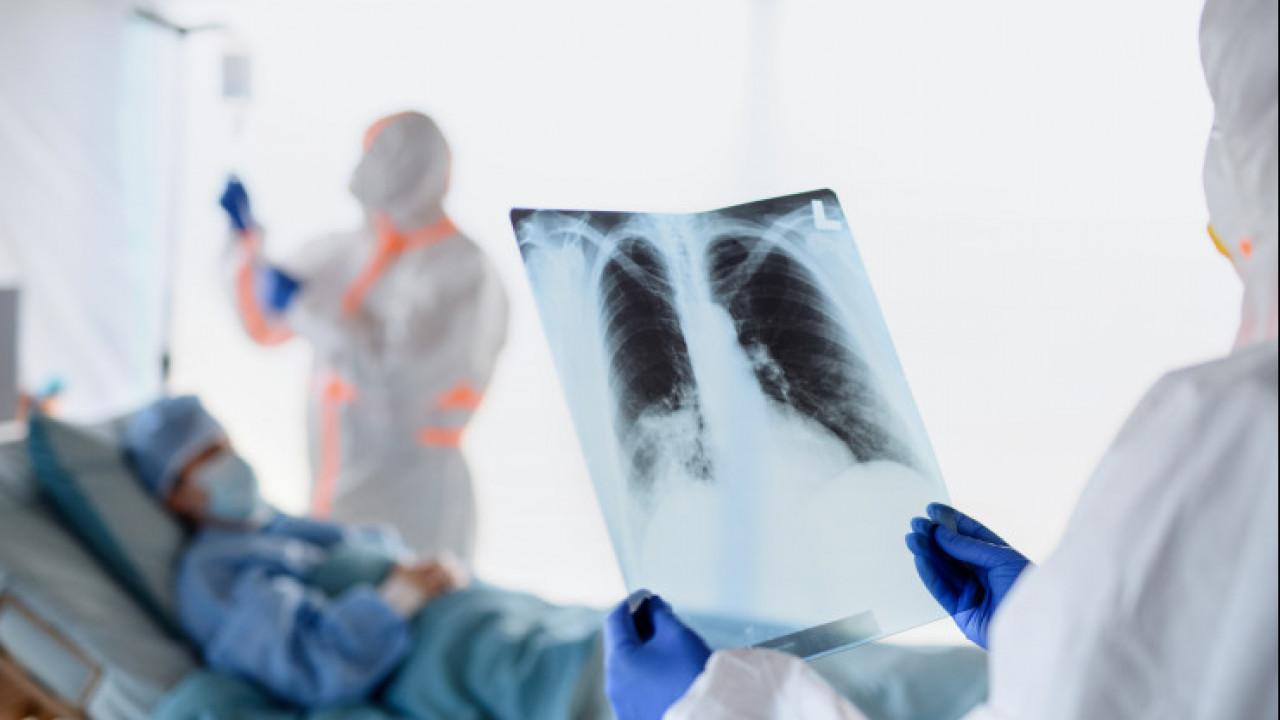 В Казахстане за сутки зарегистрировано 159 заболеваний коронавирусной пневмонией