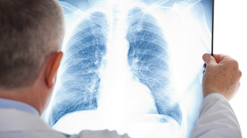 В первом полугодии в Казахстане зарегистрировано 98 500 случаев пневмонии
