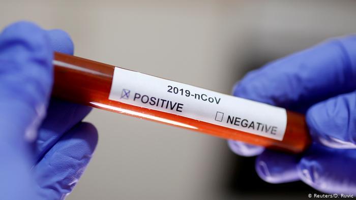 Абаев: 13 человек заразились коронавирусом в Казахстане