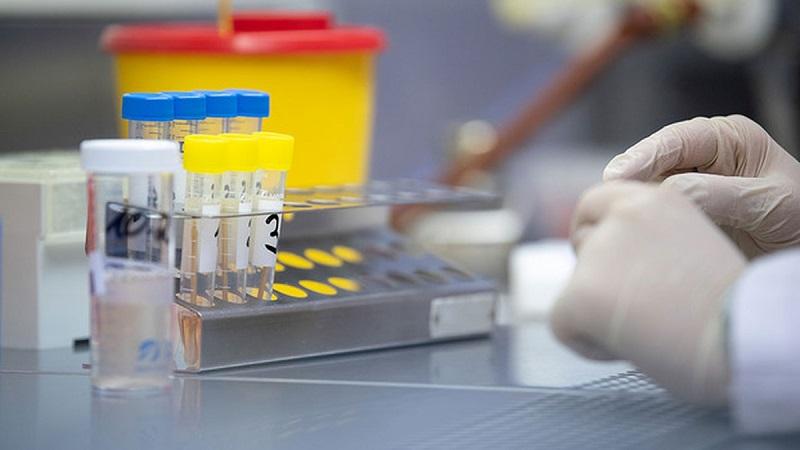 Казахстан планирует закупить 1,2 млн тест-систем для определения коронавируса