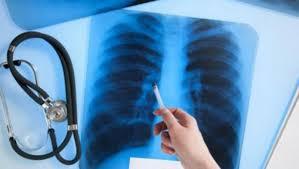 «STOP Туберкулез» акциясына 14 мыңнан астам адам қатысты